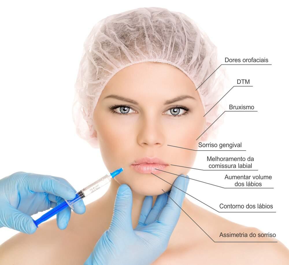 DentistaseBotox_ReproduçãoInternet